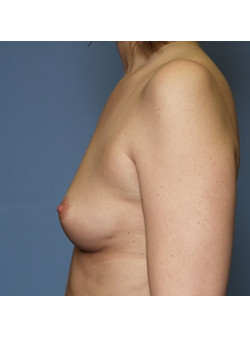Breast Augmentation Case 58